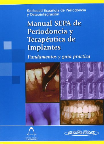 Manual S.E.P.A. de Periodoncia y Terapéutica de Implantes.