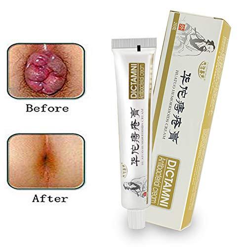 Ofanyia Natrual Hemorrhoids Cream Anal Cream for Internal Hemorrhoids Piles External Anal Fissure