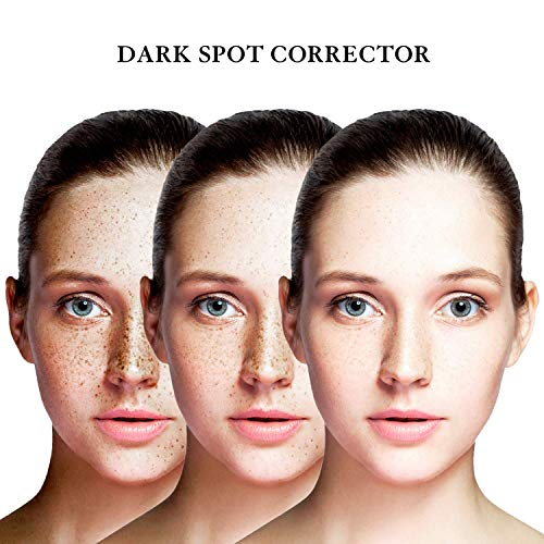 EnaSkin Dark Spot Corrector Remover for Face and Body,Formulated with Advanced Ingredient 4-Butylresorcinol, Kojic Acid, Lactic Acid and Salicylic Acid (1 Fl Oz)