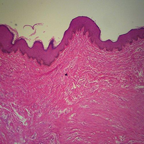 Human Heavily Pigmented Skin sec. 7 m H&E Stain Microscope Slide