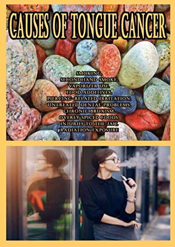 Causes of Tongue Cancer: Smoking, Secondhand Smoke, Vaporizer Use, Food Additives, Piercing-Related Irritation, Untreated Dental Problems, Chronic ... Injuries to the Jaw, Radiation Exposure