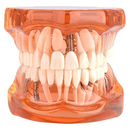 Modelo de dientes - Dientes dentales extraíbles Modelo de i