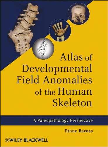 Atlas of Developmental Field Anomalies of the Human Skeleton: A Paleopathology Perspective (English Edition)