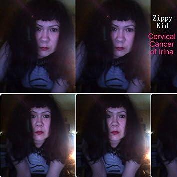 Cervical Cancer of Irina