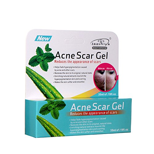 Cutelove Aloe Vera Gel Tratamiento de Acné Crema de Control de Aceite Remoción de cicatrices Shrink Pores Hidratante 35 ml