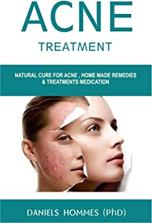 ACNE TREATMENT: All You Need To Know To Cure Your Acne Quickly, Easily and Naturally