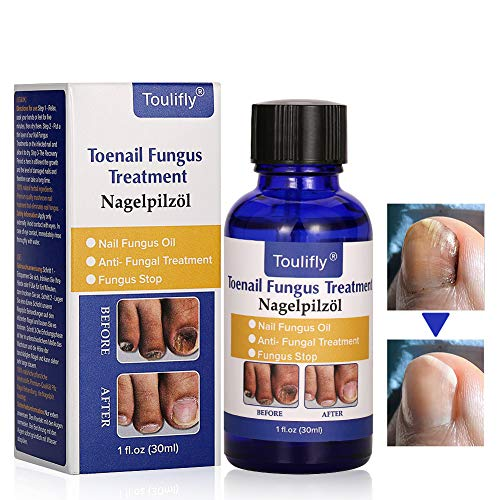 Nail Repair, Natural Nail Treatment, Maximum Strength Nail Solution, Maximum Strength Fungal Toenail Solution