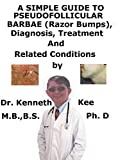 A Simple Guide To Pseudofolliculitis barbae (Razor Bumps), Diagnosis, Treatment And Related Conditions (English Edition)