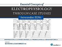 Essential Concepts of Electrophysiology Through Case Studies: Intracardiac EGMs