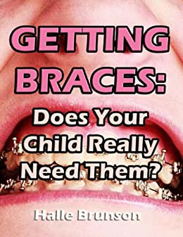 [Nick Kalyn]のGetting Braces: Does Your Child Really Need Them? (English Edition)