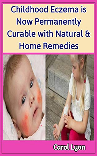 Childhood Eczema is Now Permanently Curable with Natural & Home Remedies