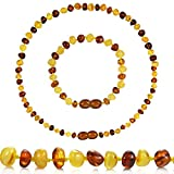 Best Baltic Amber Teething Necklaces - Temgee Baltic Amber Necklace Gift Set - Raw Review