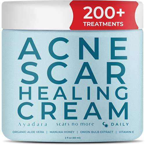 Ayadara Acne Scar Healing Cream | Vitamin E Fade Cream for Zit, Milia, & Blemish Scarring | Skin Repair & Removal Treatment for Old & New Pimple Marks & Dark Spots on Teens & Adults | 200+ Treatments