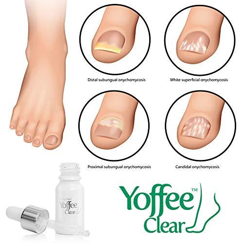 Yoffee Clear – Trattamento ristrutturante per migliorare la salute delle unghie di mani e piedi. Rimedio per rigenerare le unghie gialle e con micosi. 10ml