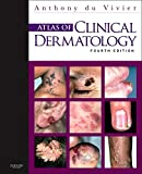 Best Dermatology Books - Atlas of Clinical Dermatology Review
