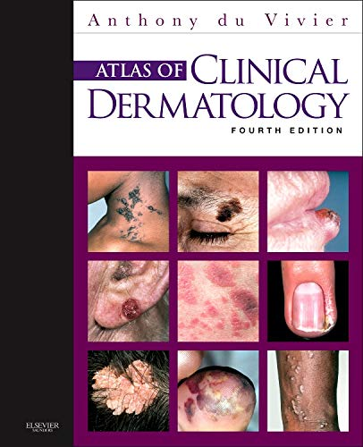 Compare Textbook Prices for Atlas of Clinical Dermatology du Vivier, Atlas of Clinical Dermatology 4 Edition ISBN 9780702034213 by du Vivier MD  FRCP, Anthony