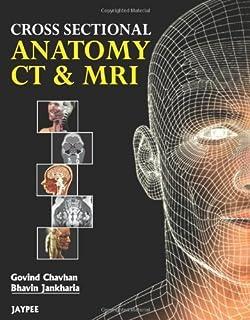Cross Sectional Anatomy CT & MRI by Govind B. Chavhan Bhavin, M.D. Jankharia(2012-01-30)