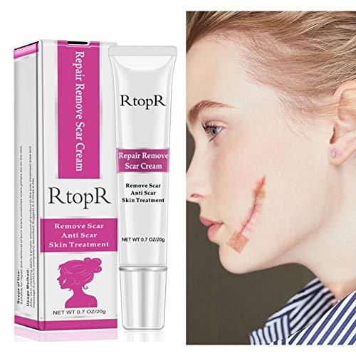 Symeas Réparation de la crème de suppression des cicatrices Symeas Réparation de la peau Réparation des taches cicatricielles Améliore l'apparence des cicatrices