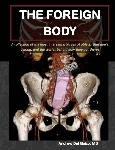 The Foreign Body: A collection of the most interesting X-rays of things that don't belong and the stories behind how they got there!