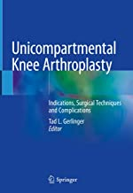 Unicompartmental Knee Arthroplasty: Indications, Surgical Techniques and Complications
