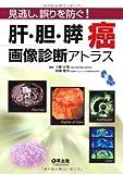 肝・胆・膵癌画像診断アトラス―見逃し、誤りを防ぐ!