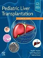 Pediatric Liver Transplantation: A Clinical Guide