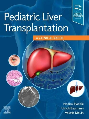Pediatric Liver Transplantation: A Clinical Guide, 1e