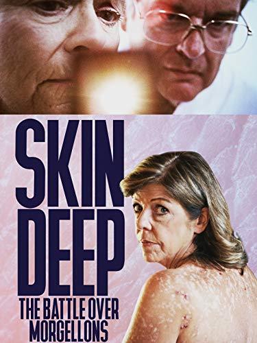 Skin Deep: The Battle Over Morgellons