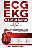 ECG/EKG Interpretation: An Easy Approach to Read a 12-Lead ECG and How to Diagnose and Treat Arrhythmias