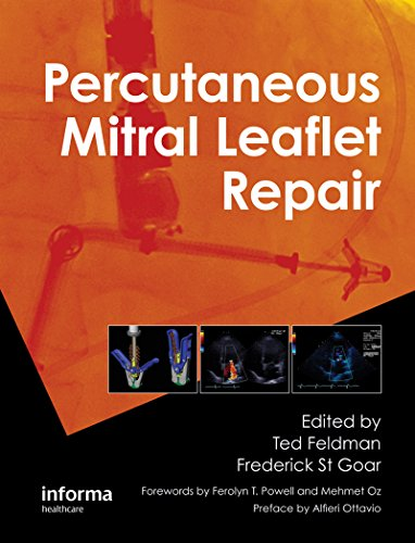 Percutaneous Mitral Leaflet Repair: MitraClip Therapy for Mitral Regurgitation (English Edition)