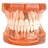 Walfront 1Pcs Modelo para Aprendizaje de Dentista Modelo de Dientes Dentadura Desmontable para Enseñanza (Naranja)