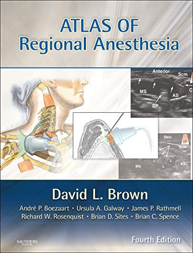 Atlas of Regional Anesthesia: Expert Consult - Online and Print (Expert Consult Title: Online + Print)