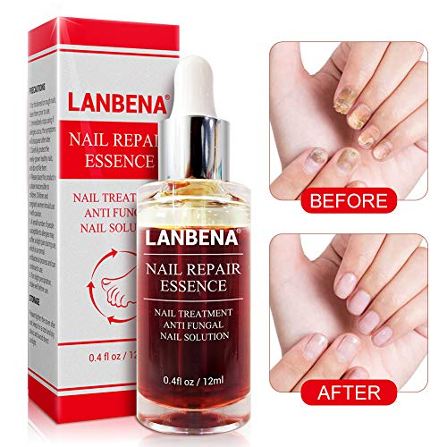 Nail Repair, LANBENA Nail Treatment Nail Care Serum Protect Nail from Damage Fingernail and Toenail Repair for Curing Athlete's Foot and Prevent Nail from Infecting Help New Nails Grow(12ml)