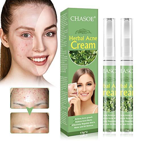 Acne Treatment, Akne Creme, Anti Pickel Creme, Gegen Pickel und unreine Haut für ein klareres Hautbild für Empfindliche Haut, Balance Wasser und Öl, Anti Pickel Creme für Frauen Männer