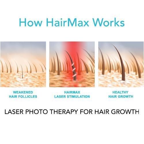 HairMaxUltima 9 Classic LaserComb