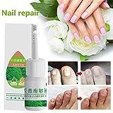 ZZEBRA Nail Repair Herbal Nail Fluid Cream Fungus Toe Nail Treatment Onychomycosis Paronychia
