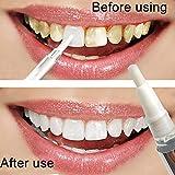melysUS Teeth Whitening Gel Pen Dental White Bleaching Tooth Whitener Stain Remover Teeth Whitening