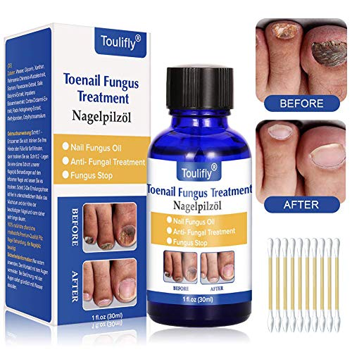 Fungus stop, fungo, trattamento anti Fungus nail...