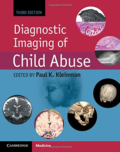 Compare Textbook Prices for Diagnostic Imaging of Child Abuse 3 Edition ISBN 9781107010536 by Kleinman, Paul K.