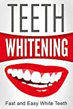Best Teeth Whitening: How To Whiten Teeth Now (Health and Wellness)
