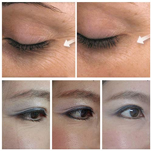 51lh02xr+hL - Vitamin C Eye Serum, BREYLEE Whitening Eye Treatment for Dark Circles and Wrinkles Removal Anti Aging Moisturizing Eye Essence for Fine Lines Organic Eye Care with Hyaluronic Acid(20ml,0.71fl Oz)