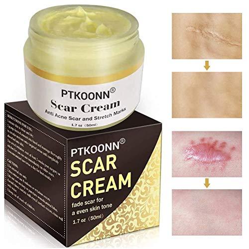 Narbencreme,Narbensalbe,Scar Cream,narbencreme nach op,Akne Creme ,Narbencreme Gesicht,Akne-Flecken,Brennen,Akne, Alte & Neue Narben