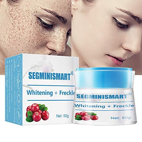 Freckle Cream, Dark Spot Corrector, Whitening Cream, Melasma Cream for Face Body Hyperpigmentation Age Spot Freckles Melasma