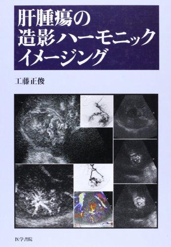 肝腫瘍の造影ハーモニックイメージングの詳細を見る