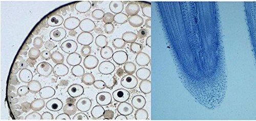 Prepared Slides, Plant and Animal Mitosis Comparison