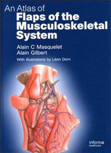An Atlas of Flaps of the Musculoskeletal System (English Edition)