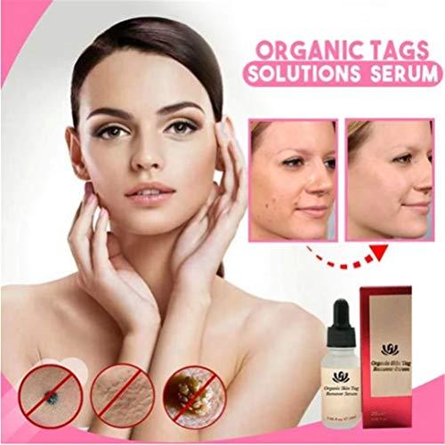 Organic Tags Solutions Serum, Cremeöl zur Entfernung und Reparatur von natürlichen Maulwurfs- und Hautmarkierungen, Aufhellungsserum für Dark Spot Corrector, schmerzfreie Reparatur (1 STÜCK)