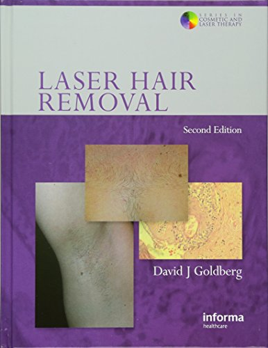 Laser Hair Removal (Series in Cosmetic and Laser Therapy, Band 5)
