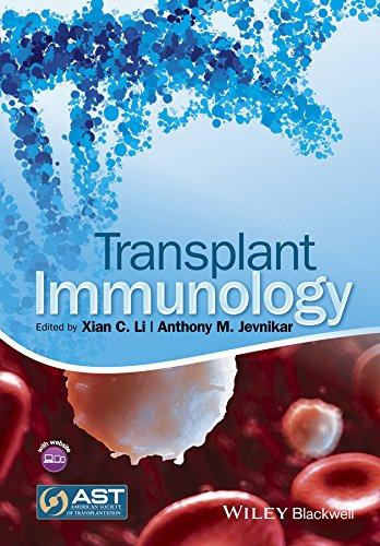 Transplant Immunology