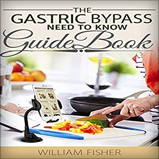 The Gastric Sleeve Need to Know Guide Book cover art